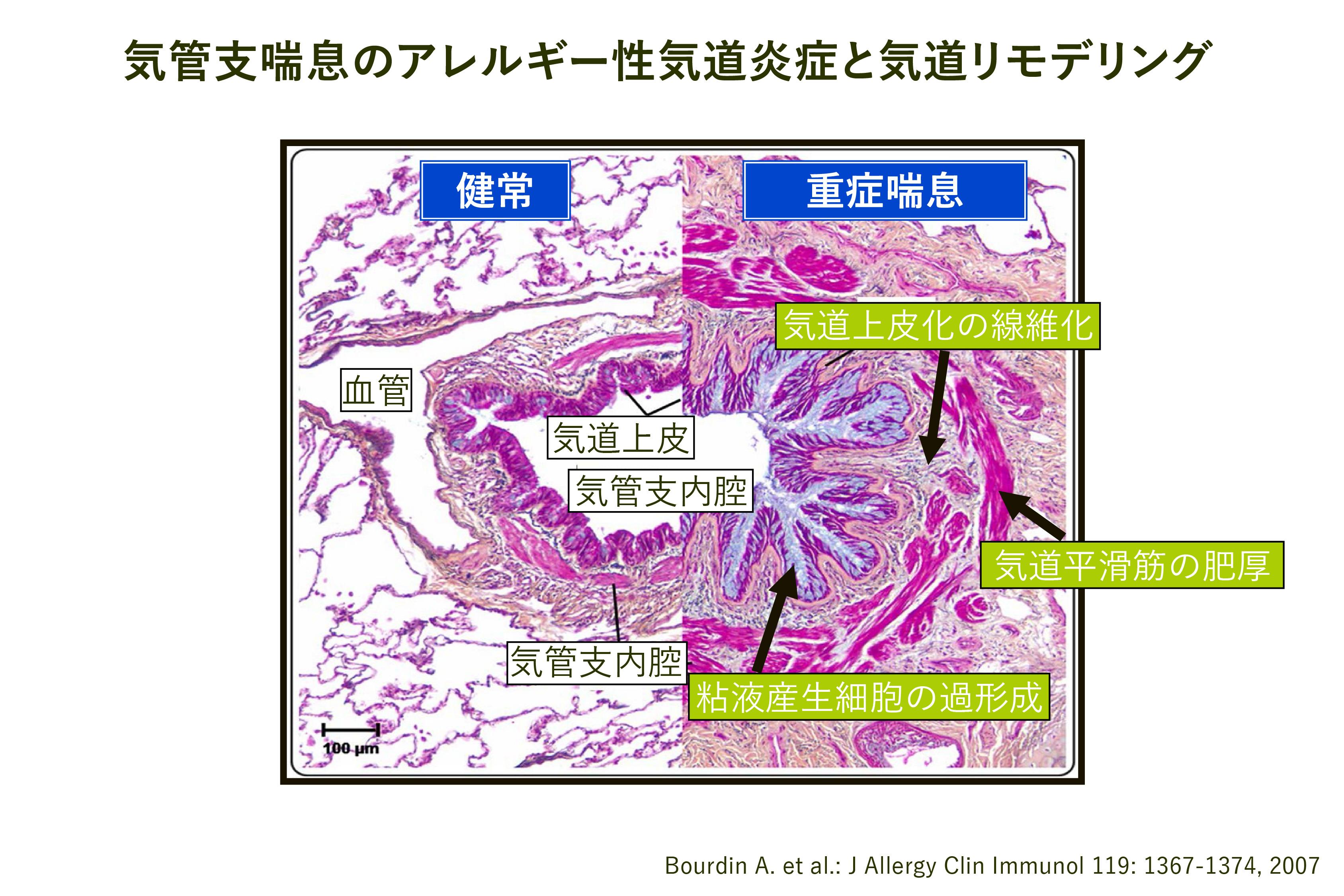 非古典的な副腎過形成